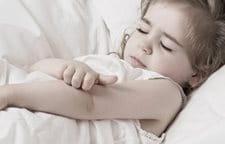 Sou-dzhok a eczema